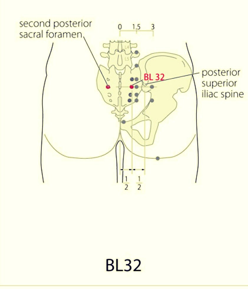 SaroEpic Acupuncture : Acupuncture points for hemorrhoids