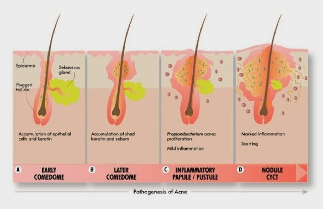 Homeopathic Dr  Muhammad Iqbal: Acne Homeopathic treatment
