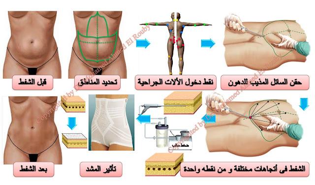 خطوات شفط الدهون