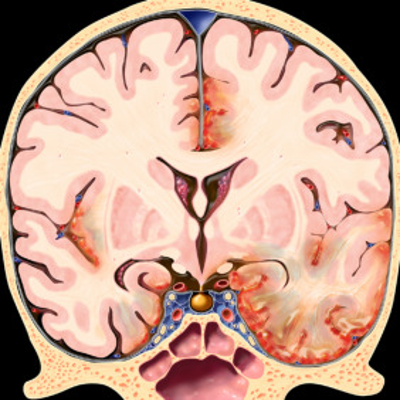 encephalitis treatment