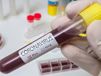 Diplomat AS Sampaikan Kekhawatiran Soal Penanganan Virus Corona di Indonesia