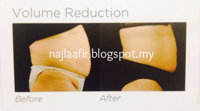 Band weight loss surgery cost photo 5