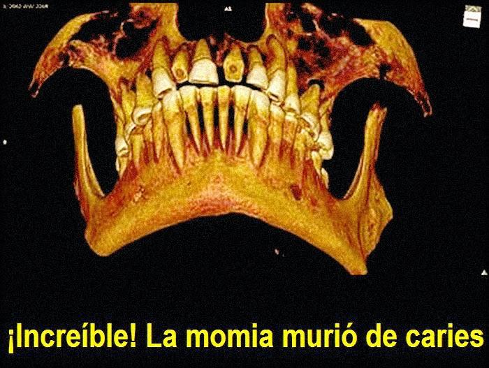 momia-caries