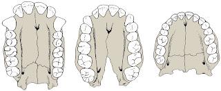 δόντια ανθρώπου,δόντια πιθήκου,human teeth,apes teeth