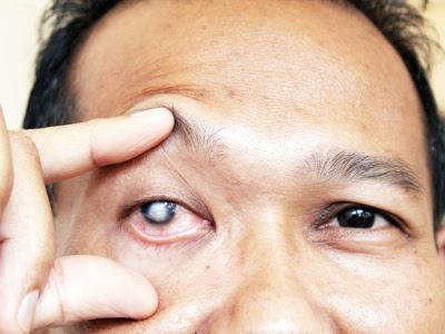 Buta mata kanan: Pengguna saman pengeluar produk RM1j