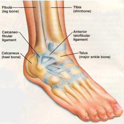 spricka i fotleden