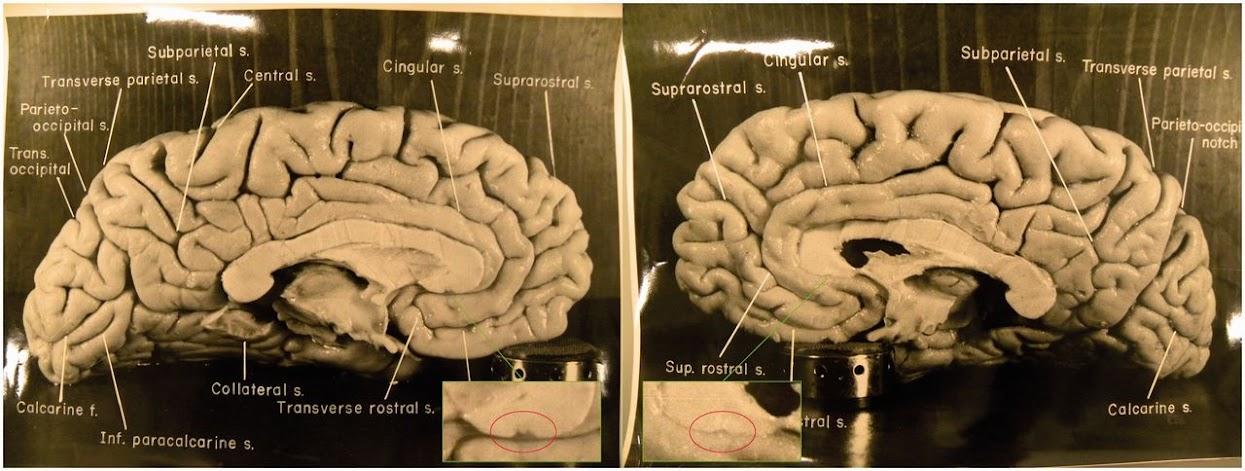 Медосмотр девушки изучаем анатомию в натуре фото 627-560