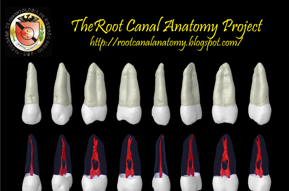 The Root Canal Anatomy Project: Maxillary Second Premolar