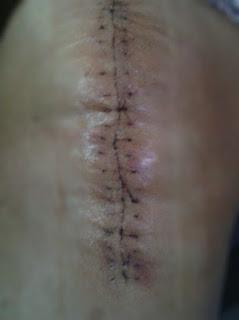 Testimoni Luka Jahitan Operation Lutut
