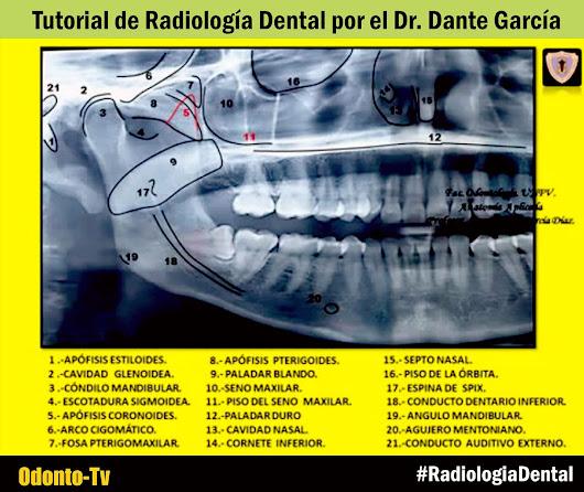 RADIOLOGÍA DENTAL: Tutorial de anatomía radiológica por el Dr. Dante ...