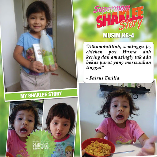 chicken pox shaklee