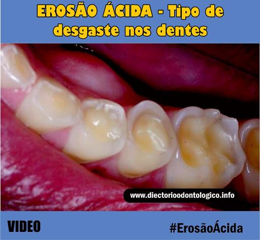 Erosao Acida