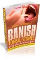Banish Tonsil Stones Scam