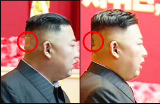 North Korean leader, Kim Jong Un spotted with plaster on the back of his head and mysterious black spots in latest health scare (photos)