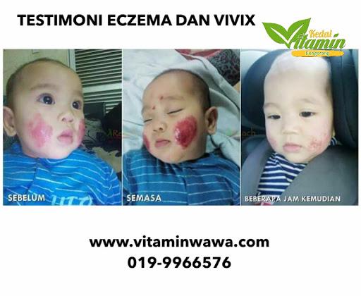 ECZEMA DAN VIVIX, TESTIMONI ECZEMA, SET ECZEMA SHAKLee, eczema shaklee, vivix dan eczema  Testimoni, Testimoni Vivix, Vivix shaklee, Pengedar Shaklee Johor, Pengedar Vivix Johor, Pengedar Vivix Shaklee, vivix shaklee reviews shaklee vivix side effects vivix shaklee harga 2016 vivix shaklee price vivix shaklee testimonials vivix shaklee cancer vivix shaklee ingredients shaklee vivix malaysia shaklee vivix side effects vivix shaklee cara makan vivix untuk sakit buah pinggang ubat buah pinggang paling mujarab makanan untuk pesakit buah pinggang cara mencegah sakit buah pinggang buah pinggang rosak penawar sakit pinggang daun sup cuci buah pinggang tanda sakit buah pinggang tahap 4 ubat sakit pinggang yang mujarab does shaklee vivix work vivix shaklee cara makan shaklee vivix cancer shaklee vivix ingredients shaklee vivix benefits shaklee vivix review shaklee vivix price shaklee vivix testimonials Images for shaklee vivix cancer shaklee cancer testimonials shaklee cancer treatment nutriferon and cancer nutriferon negative side effects shaklee nutriferon side effects does shaklee vivix work shaklee vivix side effects shaklee vivix testimonials