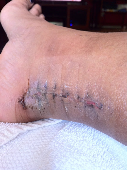 7/12/12 - stitches dissolving first shower of foot!