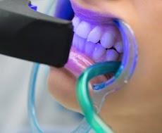 5 Jenis Perawatan Gigi di SehatQ.com untuk Memastikan Gigi Sehat dan Tampil Percaya Diri