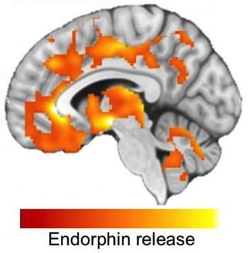 Hiit endorphin release neurosciencneews