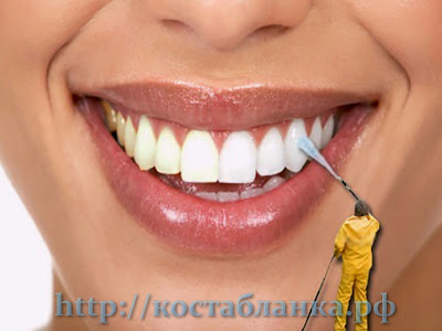 зубы, КостаБланкаРФ