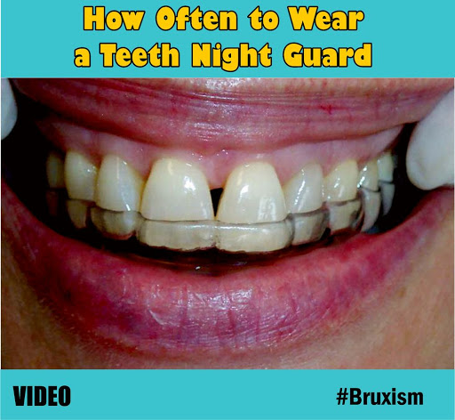 Teeth-Night-Guard