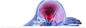 Causes of Stroke and Best Fruit Recommendations for Stroke Sufferers