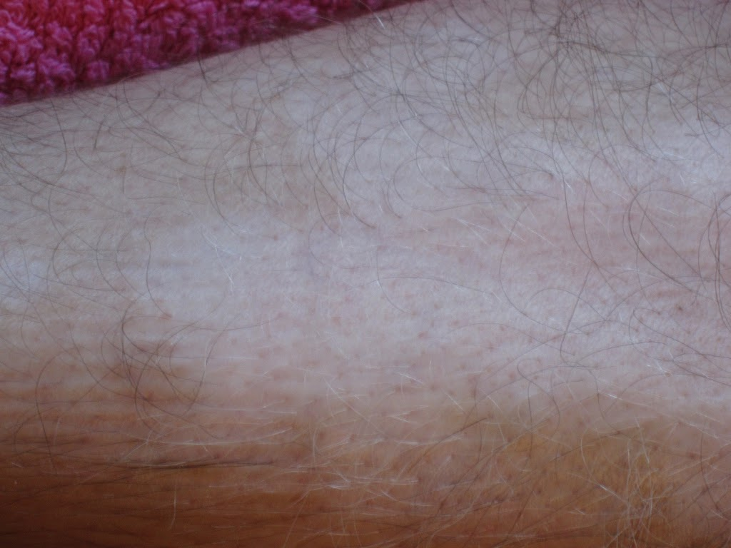 Vitiligo before 2