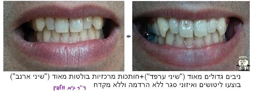 """מאקרודונטיה - שיניים גדולות מהרגיל - שיני ארנבת, שיני ערפד - ד""""ר גיא וולפין, אסתטיקה דנטלית"""