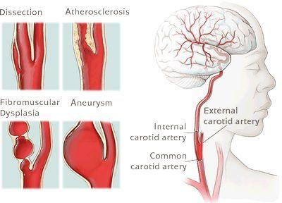 internal carotid artery stenosis guidelines