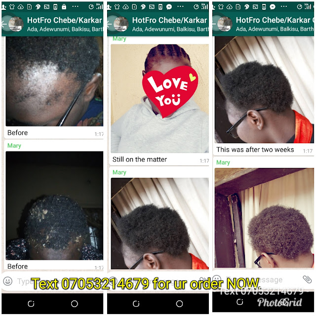 Quick Order:  Chebe Powder and karkar Oil*: This works for general hair treatment. It grows hair, stops hair breakage & treats the scalp.  Small #1,500 and big #2,000 Sms 07053214679
