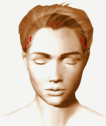 Incisions cicatrices lifting cervico-facial temporal frontal