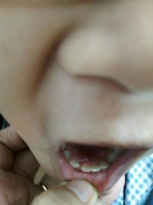 Gigi baru tumbuh gigi susu tak patah lagi