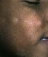 pityriasis%252520alba Penyakit Kulit Pityriasis Alba, Putih Yang Bukan Jamur