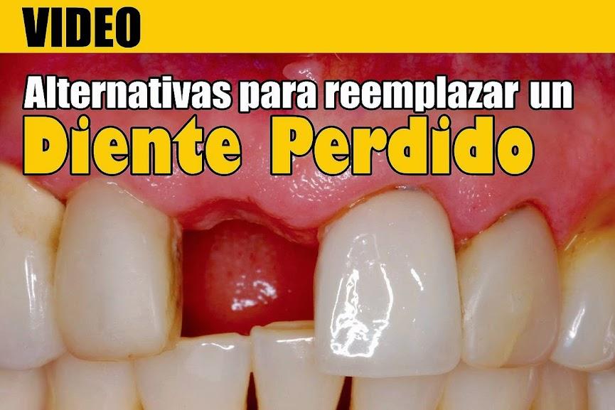 reemplazar-diente