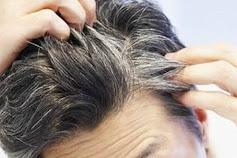 Angin Segar untuk Para Pemilik Rambut Beruban, Modalnya Cuma Mentega Uban di Rambut Bisa Teratasi