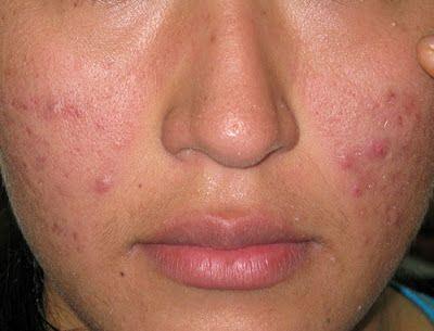 Cara Menyembuhkan Alergi Kulit Wajah