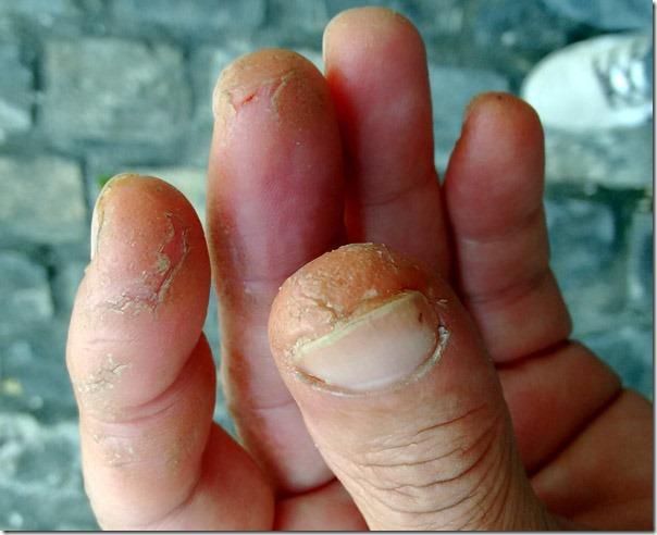 psoriase-palmar