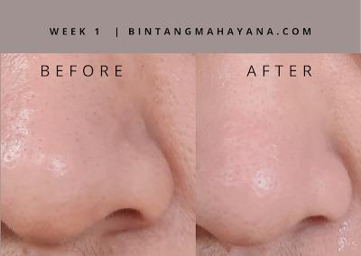 hasil-avoskin-miraculous-retinol-toner-bintangmahayana-com