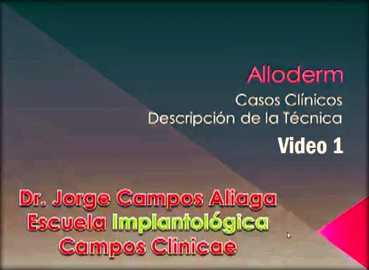 implantologia-alloderm
