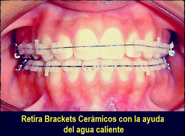 brackets-ceramicas