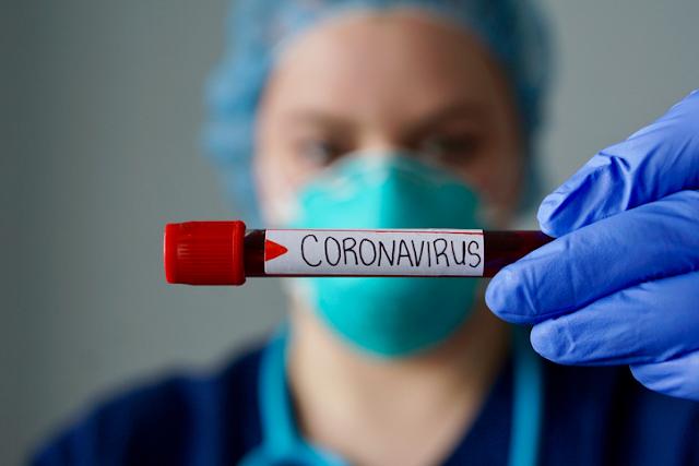 República Dominicana suma 1,397 nuevos casos de COVID-19. En Barahona 91 Hoy