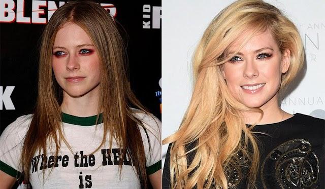 Efecto Avril Lavigne: lo que contribuye y dificulta a mantener una piel joven
