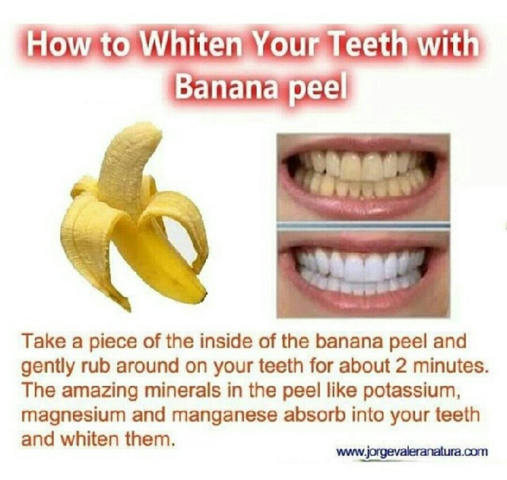 To teeth whitening you don't have to go to the dentist. In continue we will give you natural homemade remedy that will give you the results you want in just ...