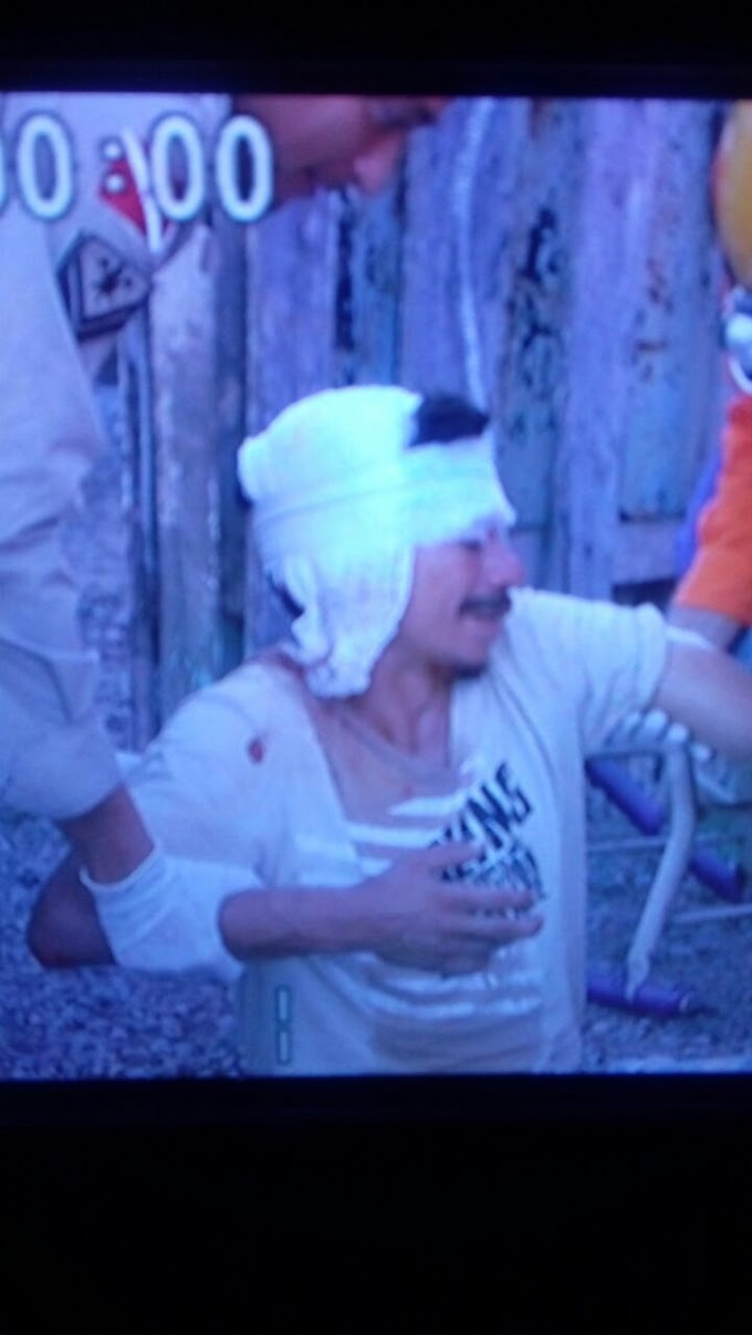 Um homem foi atingido com uma paulada na cabeça, quando entrou em uma chácara no km 05, para furtar feijão.