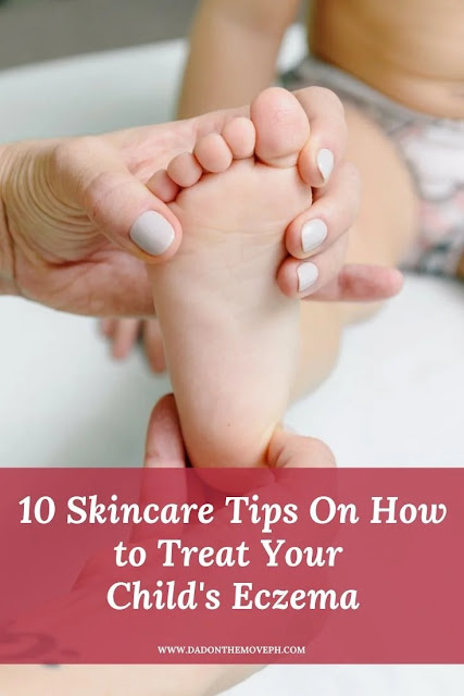 How to manage and treat your child's eczema