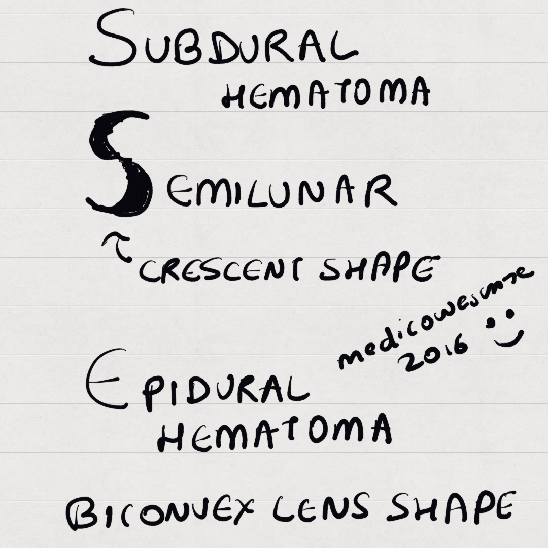 Medicowesome: CT appearance of subdural and epidural hematoma mnemonic