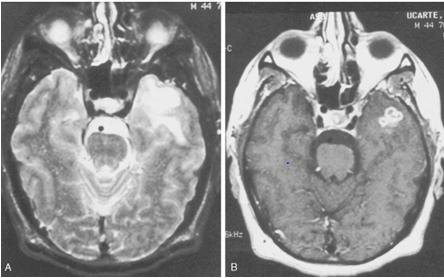 abnormal mri brain