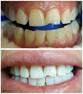 הלבנת שיניים תוך שעה במרפאה עם מכשיר זום, גיא וולפין - אסתטיקה דנטלית ושיקום הפה