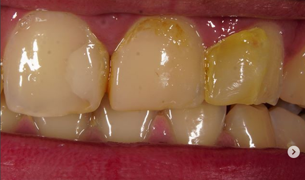Tooth decay stages and its causes and methods of treatment 1