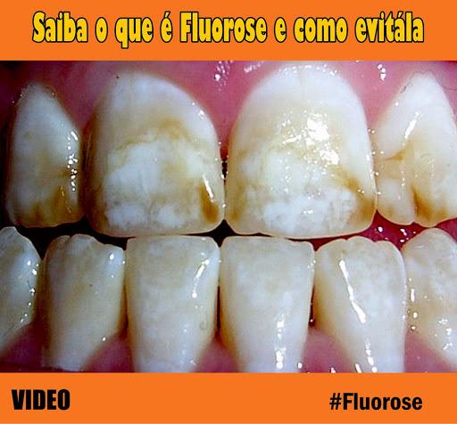 Fluorose-dentária