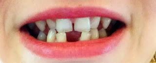 genetically missing teeth